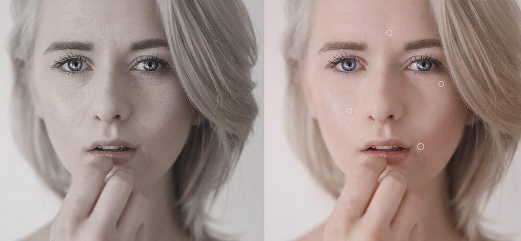 ảnh trước và sau khi sử dụng truface